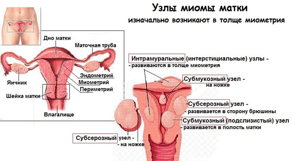 Беременность и субсерозный узел