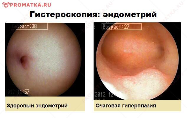 Гистероскопия: норма, очаговая гиперплазия