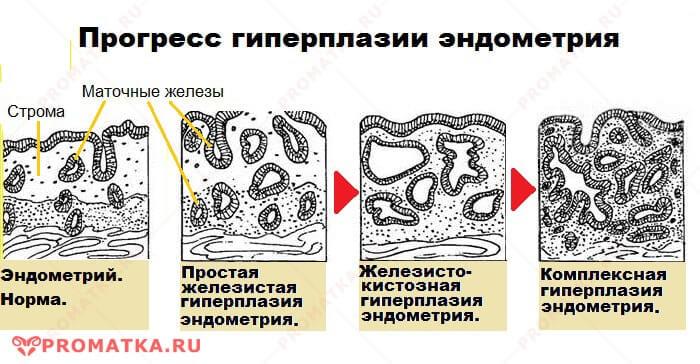Прогресс железистой гиперплазии эндометрия