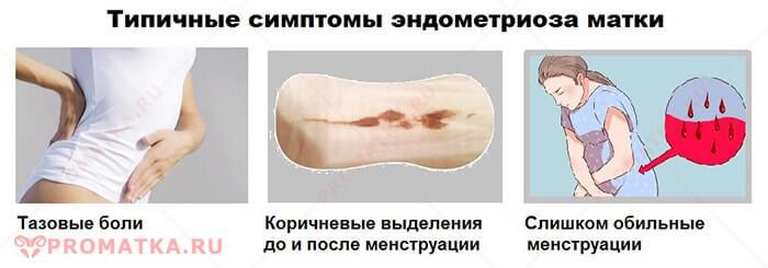 Симптомы эндометриоза матки