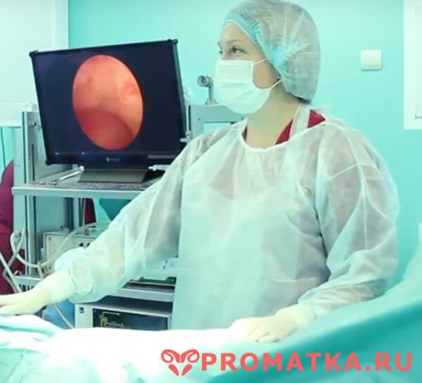 Методы удаления полипа эндометрия