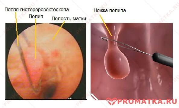 Анализы перед гистероскопией матки удаление полипа