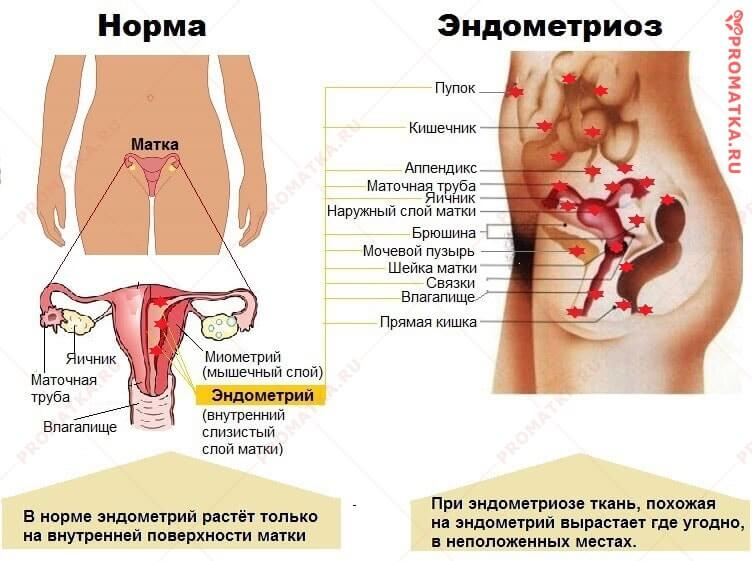 Эндометриоз - схема