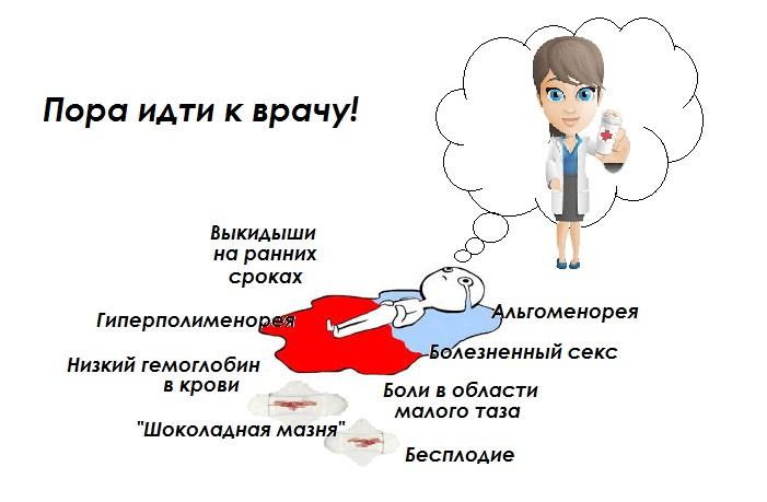 Эндометриоз матки признаки