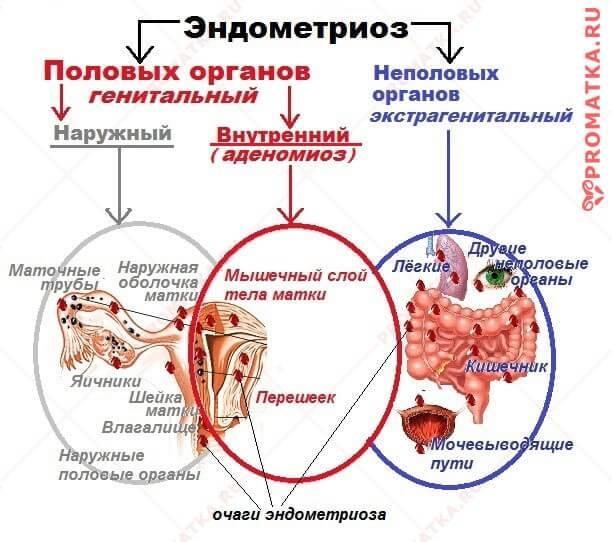 Классификация эндометриоза схема