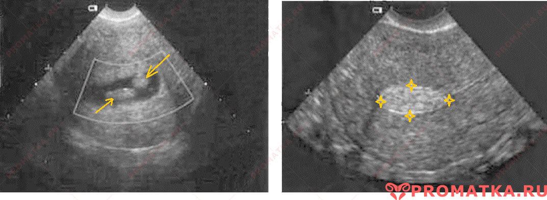 Полип эндометрия на УЗИ