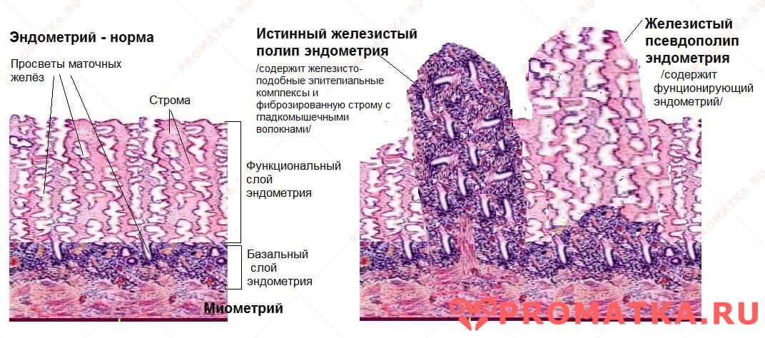 Схема эндометрия и полипов