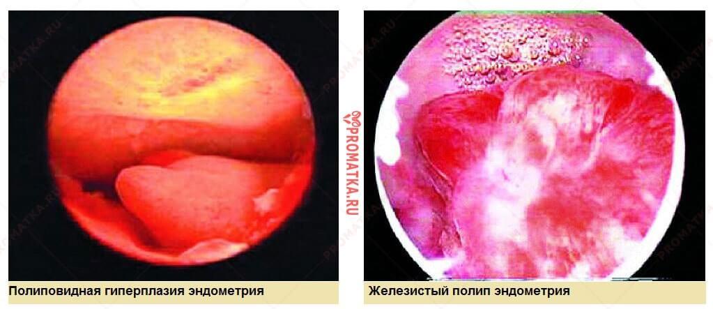 Гистероскопия – изображение полипов