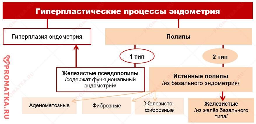 Полипы эндометрия – схема