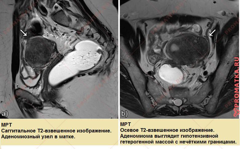 Узловой аденомиоз на МРТ