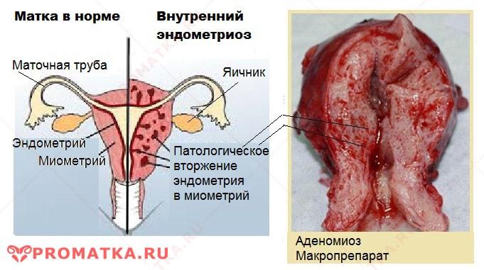 Внутренний эндометриоз - схема