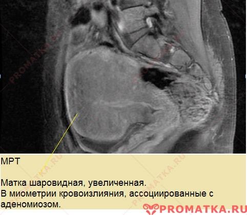 Диффузный аденомиоз – МРТ