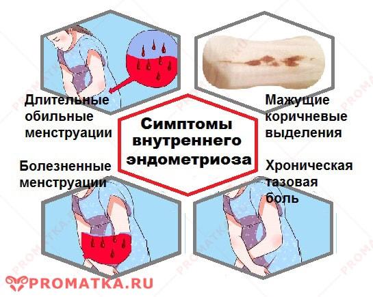 Внутренний эндометриоз симптомы - схема