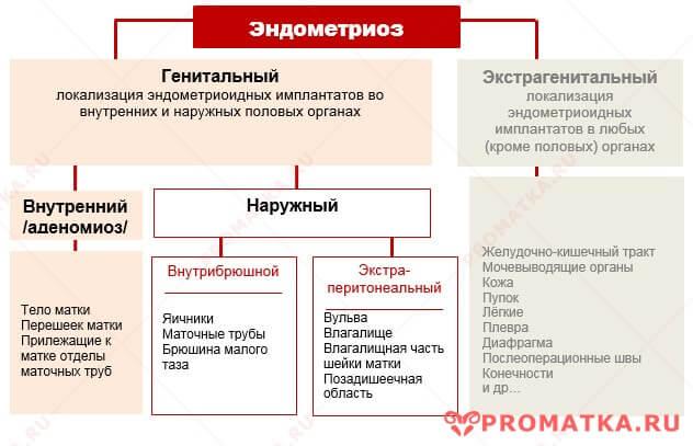 Генитальный эндометриоз – схема
