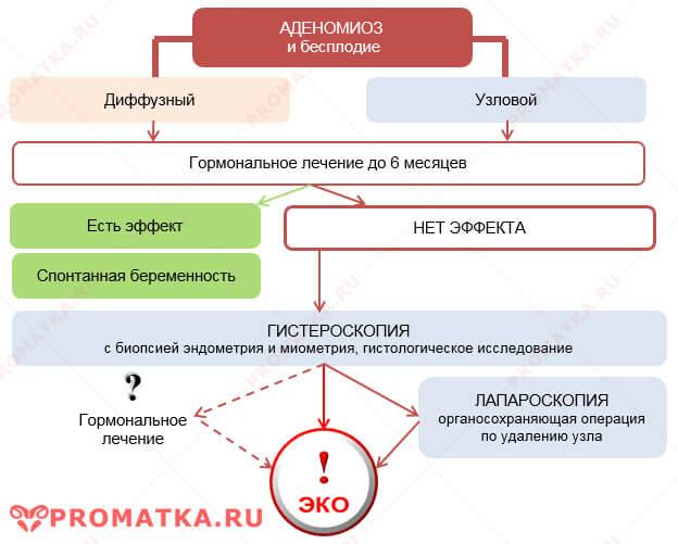 Как забеременеть с аденомиозом - схема