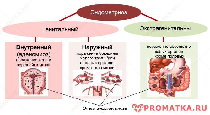 Классификация эндометриоза - схема