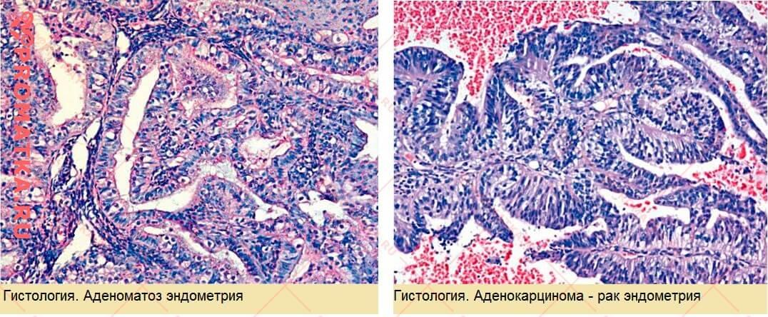 Гистология эндометрия