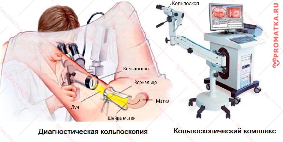 Кольпоскопия-схема