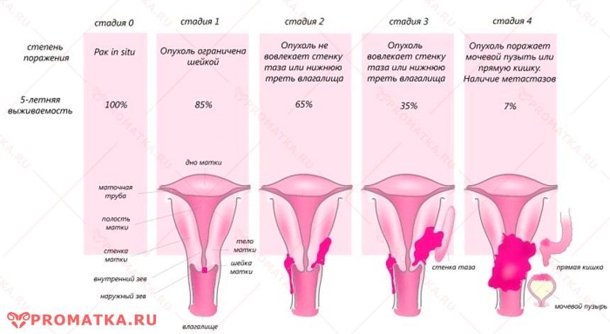 Прогноз выживаемости при раке шейки матки