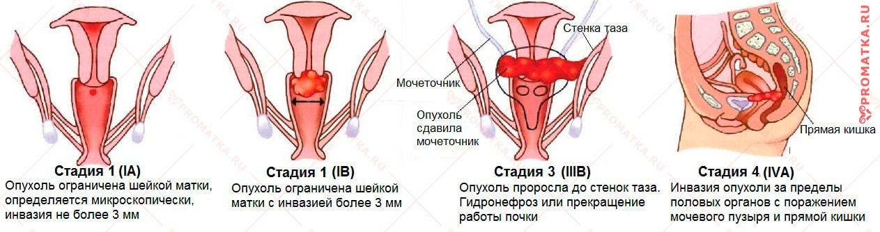 Рак шейки матки – стадии