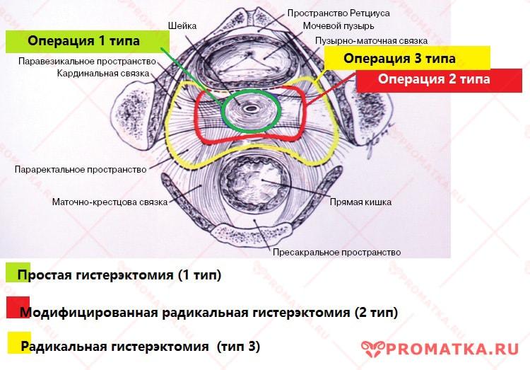 Хирургическое лечение рака шейки матки