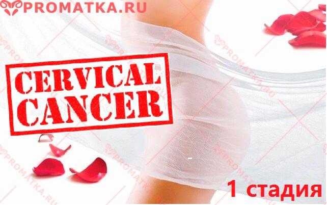 Можно ли вылечить рак шейки матки