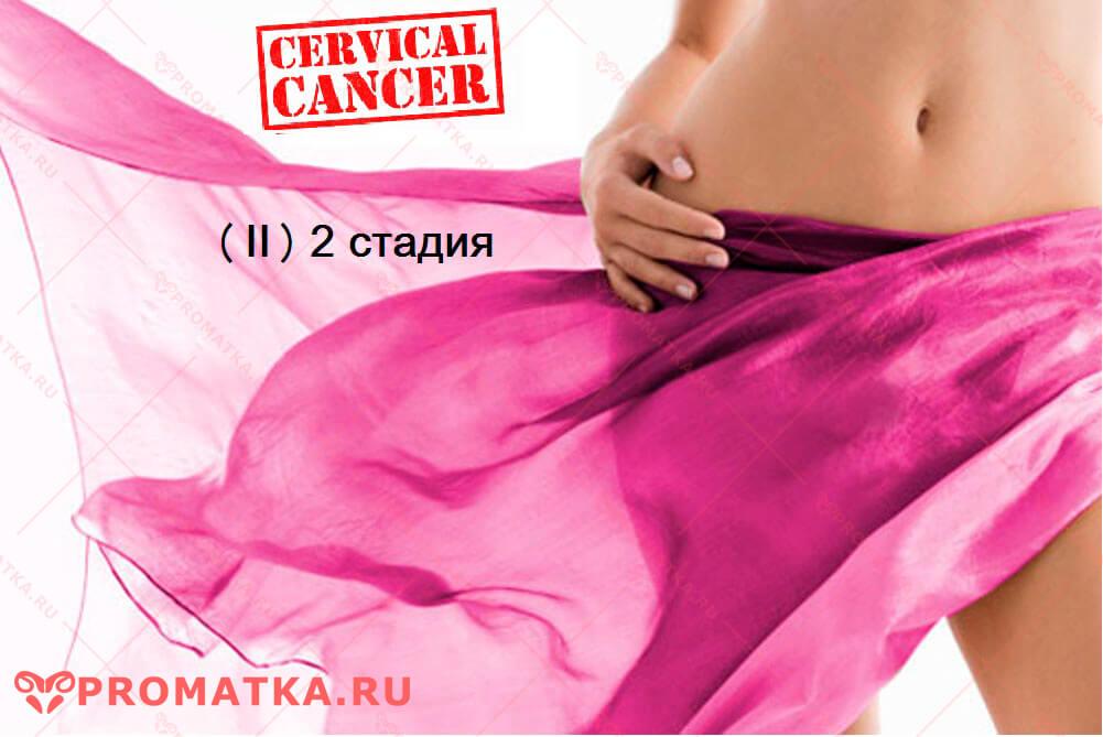 лечение 2 стадии рака шейкиматки
