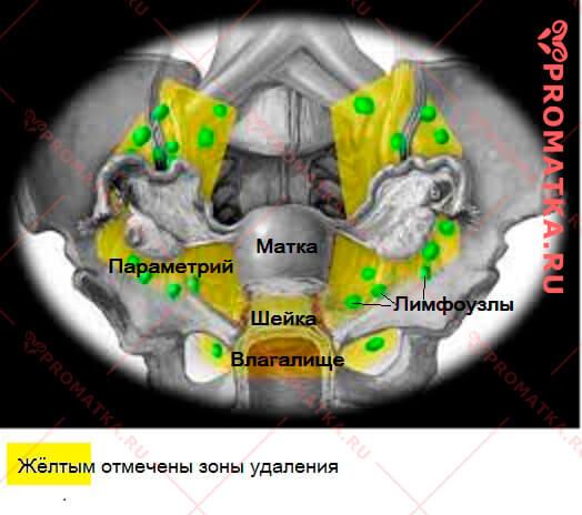 Радикальная трахелэктомия – схема