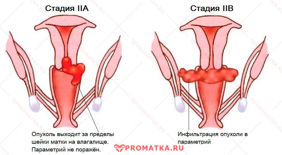 Рак шейки матки 2 стадия - схема