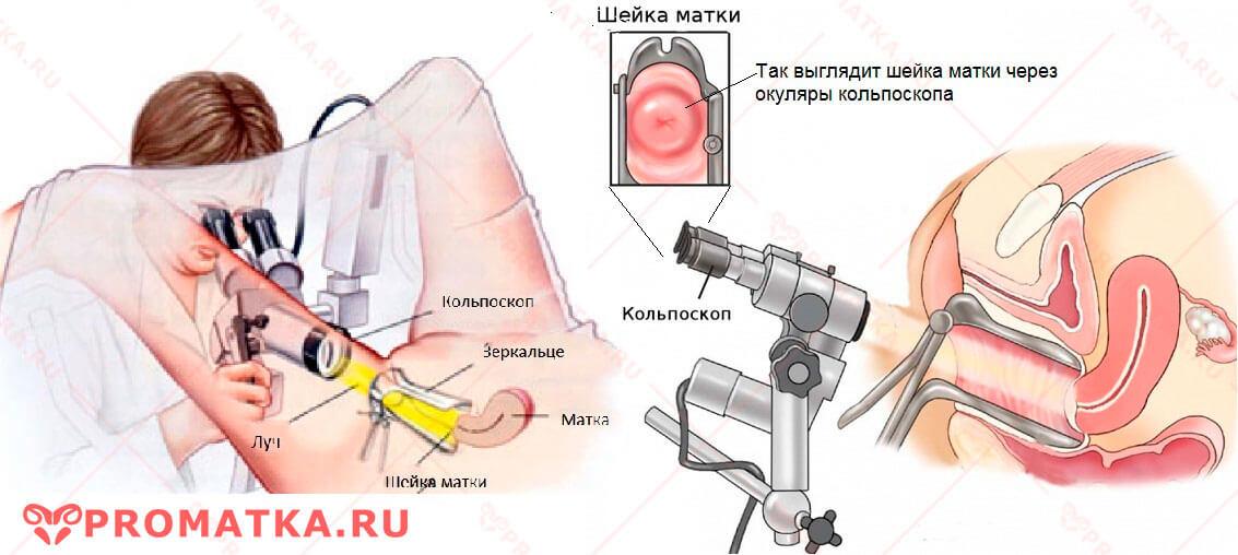 Диагностическая кольпоскопия