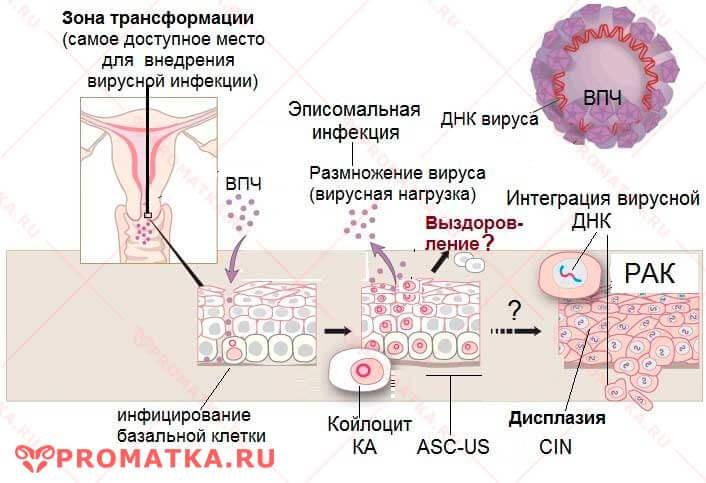 ВПЧ-инфекция