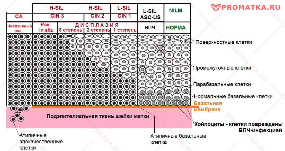 Степень дисплазии ШМ