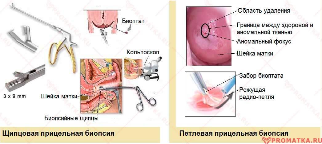 Прицельная биопсия шейки матки