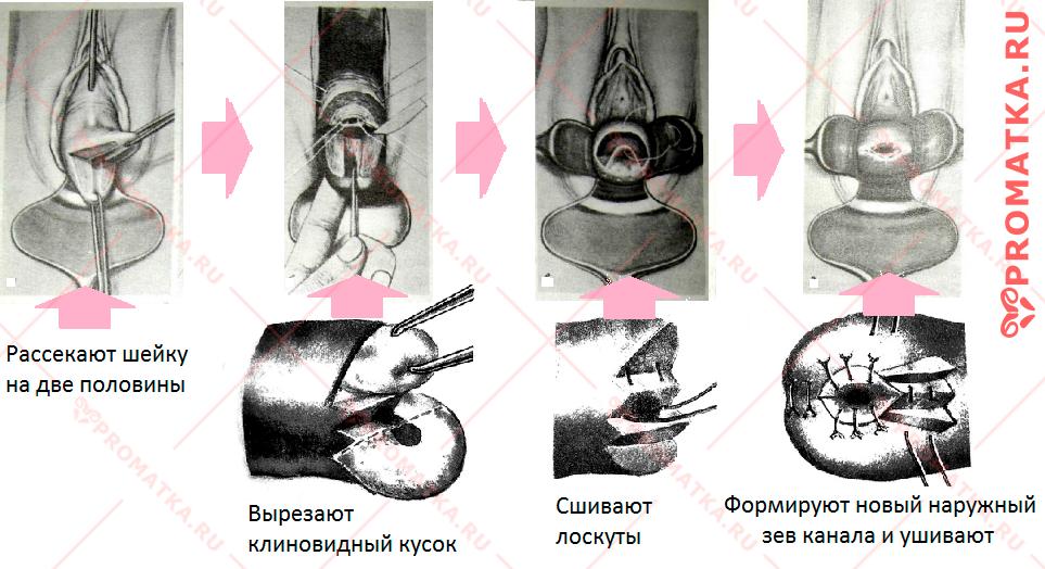 Операция Шредера
